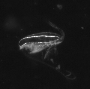 A photograph of a C. finmarchicus C5 with a large oil sac, taken with a VPR (Video Plankton Recorder).