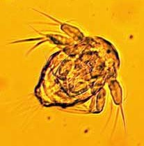 This is part of the larval stage, nauplius of a copepod.