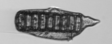 Engulfer- Gyrodinium will engulf itself around the diatom (Paralia consumed by Gyrodinium).Photo Credit: MVCO