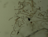 Diatoms, eggs and larvae under the microscope